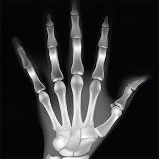 X 射线扫描 APP截图